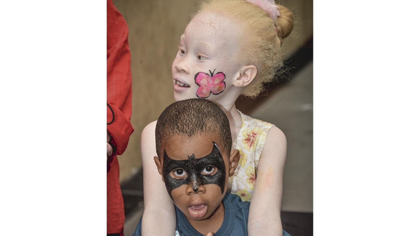 Descrição de imagem: foto de Mônica abraçando o irmão Luciano. Ela é albina, usa vestido amarelo florido e tem uma borboleta pintada na bochecha. O menino é negro, usa camiseta cinza e tem uma máscara do Batman pintada no rosto.