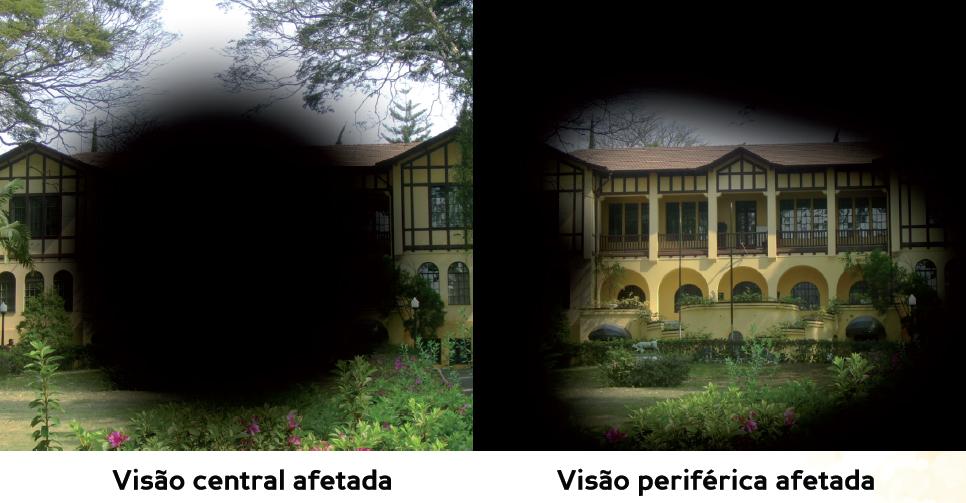 Descrição da imagem: duas fotografias de um casarão amarelo com jardim na frente. Na da esquerda há uma grande mancha preta no centro, representando a visão central afetada. Na da direita há uma mancha preta nas bordas da imagem, representando a visão periférica afetada.